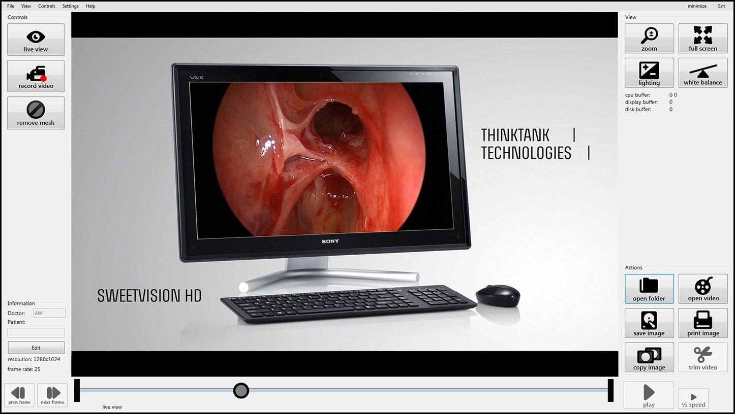 machine vision endoscopy solution